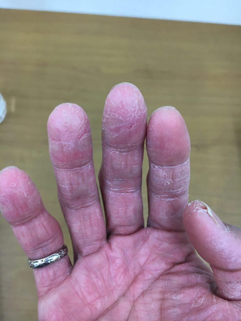 カチカチに固くなってひび割れた指先を治した話